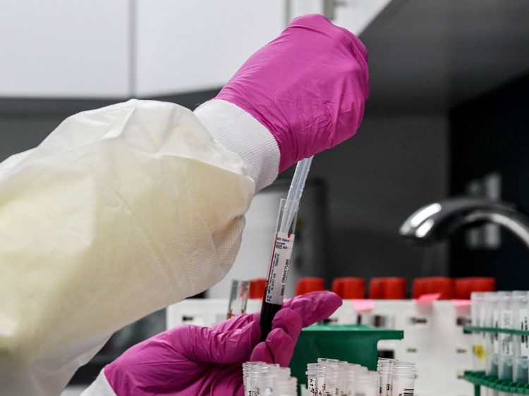 A lab technician sorts blood samples for COVID-19 vaccination study at the Research Centers of America in Hollywood, Florida on August 13, 2020.  Photographer: Chandan Khanna/AFP/Getty Images